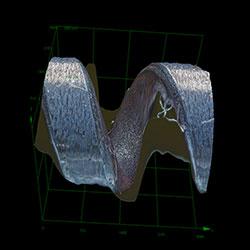 Piston ring SE_ob20X_3D